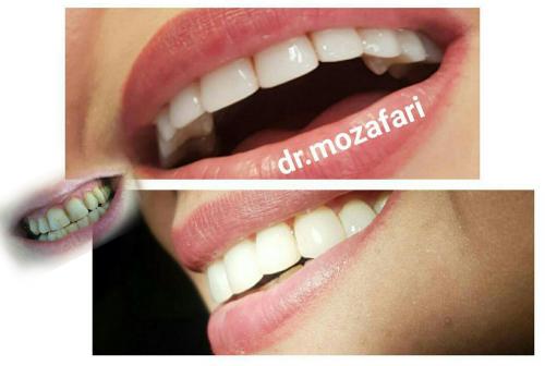 دکتر مرضیه مظفری جراح-دندانپزشک