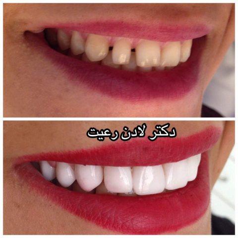 دکتر لادن رعیت | جراح و دندانپزشک