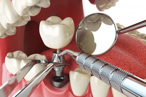 دریاب بن تجهیز | لوازم دندانپزشکی