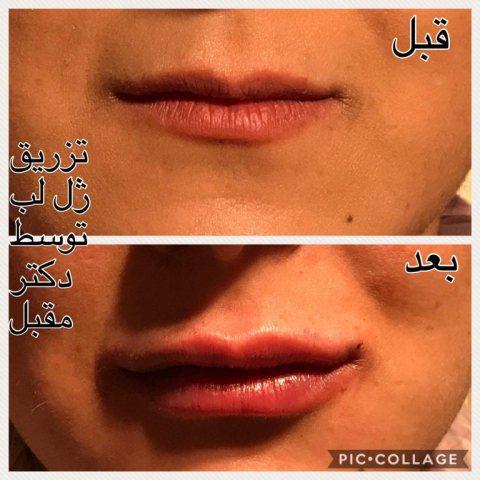 دکتر فرزاد مقبل | خدمات پوست ، مو و زیبایی